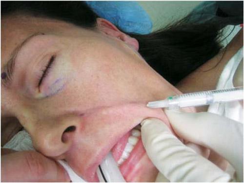 операция по удалению складок на лице