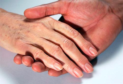 пигментированные руки