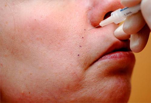 инъекции от носогубных морщин