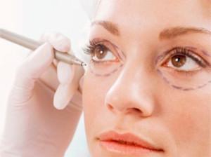 блефаропластика области глаз