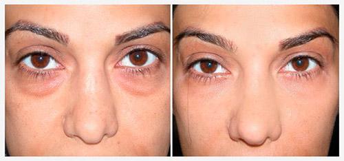 инфекционные поражения вокруг глаз