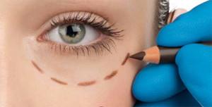 блефаропластика вокруг глаз