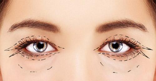 линии на лице вокруг глаз бефаропластика