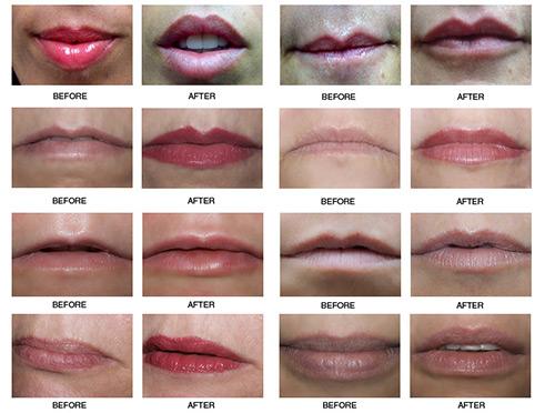 пример губ до и после ботокса