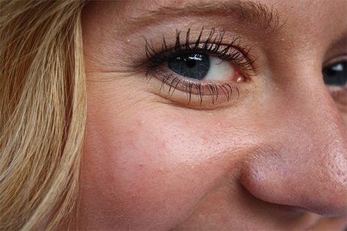морщины у глаз