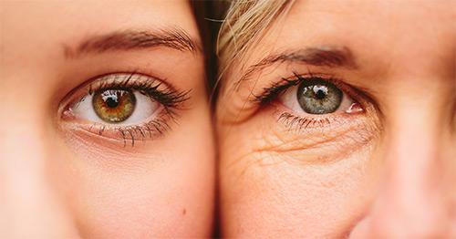 Как бороться увяданием кожи под глазами? Что делать с дряблостью и морщинами?