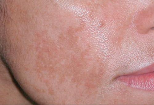 Пигментация на лице и как избавиться