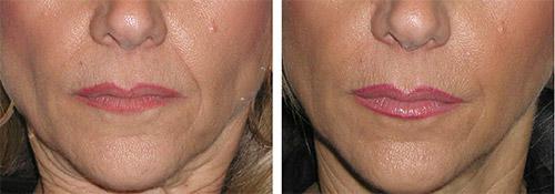 после операции на лице