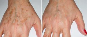 Что такое пигментация кожи и как с ней бороться