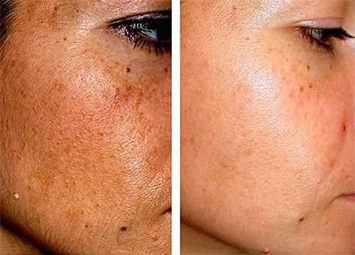 Удаление возрастных пигментных пятен на лице