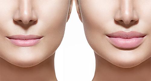 сравнение губ