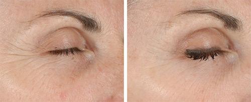 лазерная терапия лица